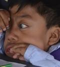 Las principales manifestaciones de la enfermedad son los rasgos faciales bruscos, como puente nasal plano, labios gruesos, boca y lenguas agrandadas, manos que no se pueden cerrar, estatura baja, tronco corto, abdomen abultado y hernia umbilical.
